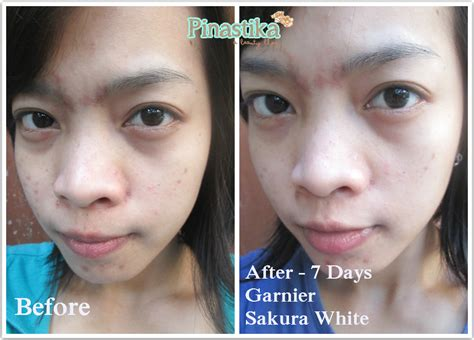 Pelembab Garnier Serum by Pinastika Review Garnier White 7