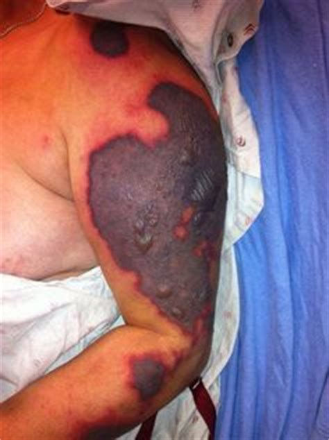 dirty tattoo needle infection 1000 images about say no to drugs on pinterest