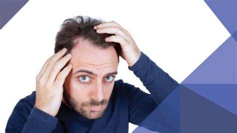 Mengobati Rambut Rontok Dan Botak Bagi Pria Bisa Dilakukan Dengan | 5 cara mengobati rambut rontok pada pria yang paling ampuh