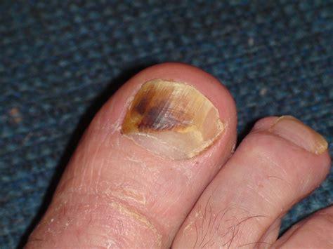 toe cancer melanoma toenail big toe