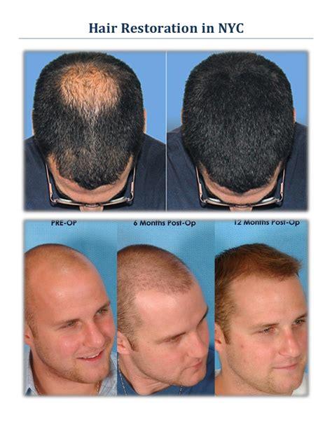 americas best hair transplant best hair transplant nyc revive fue hair restoration in