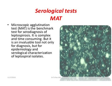 Lepto Mat Test by Leptospirosis
