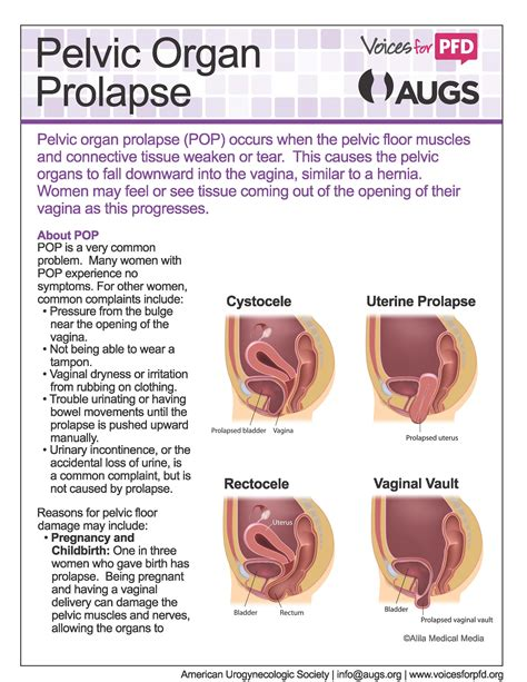prolapsed bladder prolapse symptoms patient fact sheets healthcare providers augs