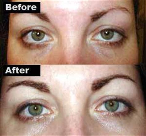 tattoo eyebrows and mri micropigmentation causes symptoms treatment