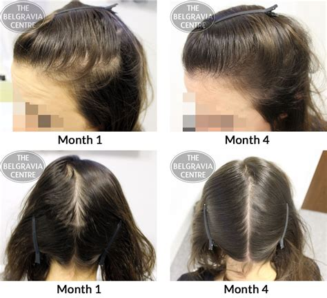 pattern of hair loss success story alert new female hair loss treatment entry