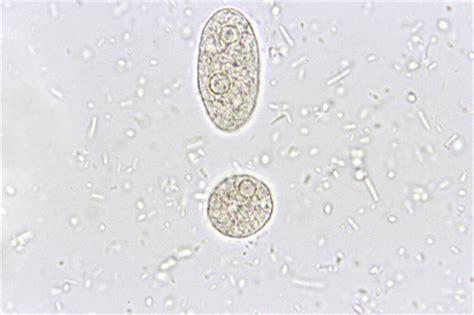 Trophozoites In Stool by Entamoeba Histolytica Laboratories