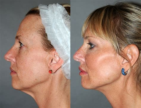 aging jaw line aging jaw line aging jaw line pin by y lift on y lift 174