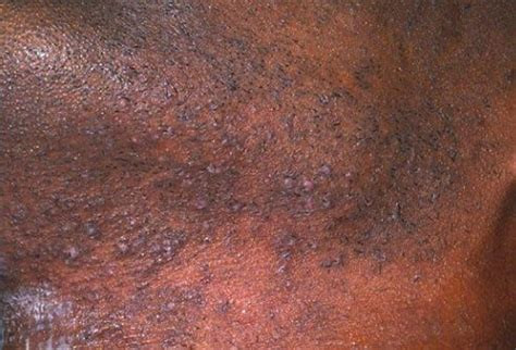 1000 images about moles warts and skin tags on