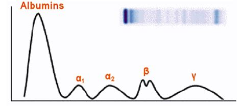 u protein electrophoresis lab exercises 4 6 and immunoelectrophoresis