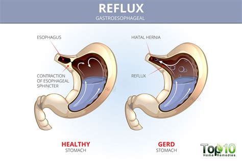 reflux diagram 10 foods you shouldn t eat if you heartburn and acid