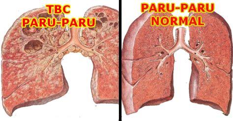 Obat Sakit Paru Paru Akibat Merokok image gallery tbc