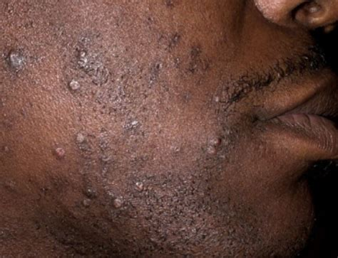bump on gums pimple cyst not below teeth