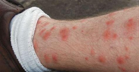 flea bites galaxy   pinterest fleas tips  treats