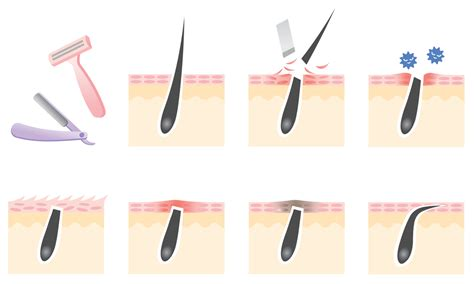 how to prevent ingrown hairs after a haircut my personal tips on how to prevent ingrown hairs