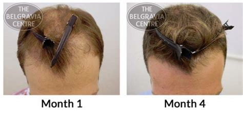 female pattern hair loss minoxidil what s the link between belly fat and hair loss