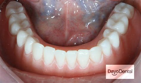 for dental implants in mexico dental implants in mexico what you need to cost