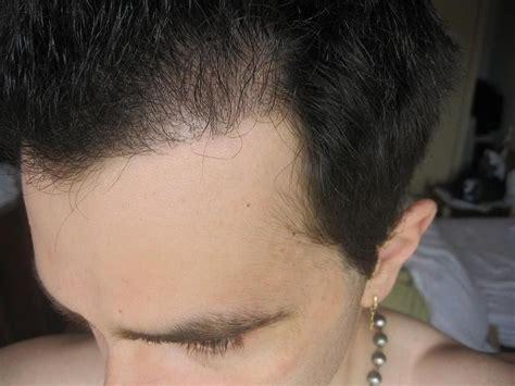 male fine hair wet crown dr rahal 3393 grafts tira recuperar el pelo