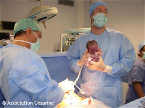foetus en siege c 233 sarine si 232 ge et c 233 sarienne