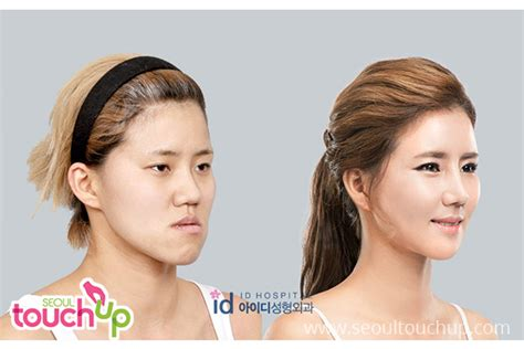 Most Important Cosmetic Surgery Advances In Past 5 Years Podcast by Advanced Contouring Surgery Seoul Touchup