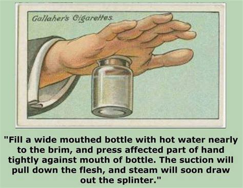 How To Remove Splinters With Ease by 1000 Ideas About Removing Splinters On Remove