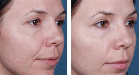 light chemical peel before and after superficial chemical skin peel glasgow chemical