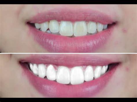 teeth whiter vegan cruelty  teeth