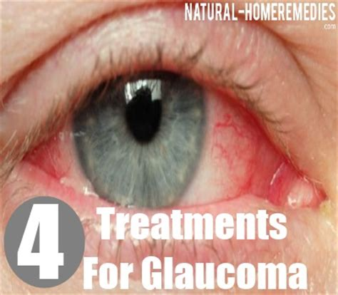 glaucoma treatment 4 treatment options for glaucoma how to treat glaucoma home remedies