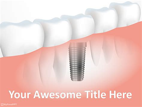 Free Dental Powerpoint Templates Themes Ppt Dental Powerpoint Templates