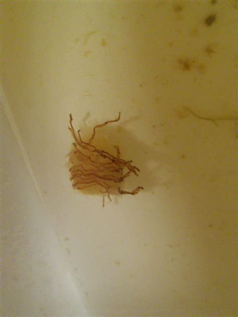 what is this in stool parasite or banana fibers