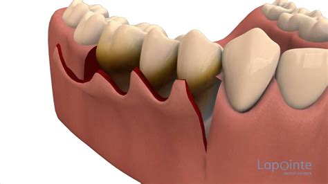 surgical esthetic correction for gingival pigmentation periodontal flap approach surgery lapointe dental