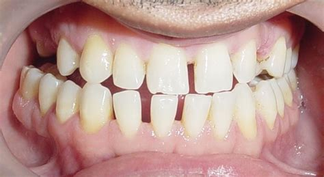 gaps in teeth crooked teeth hillside dental