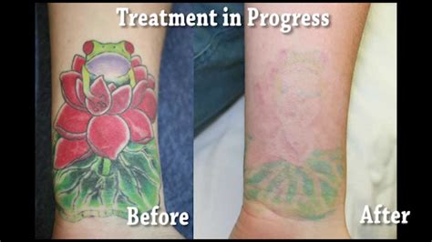 bright color tattoo removal youtube
