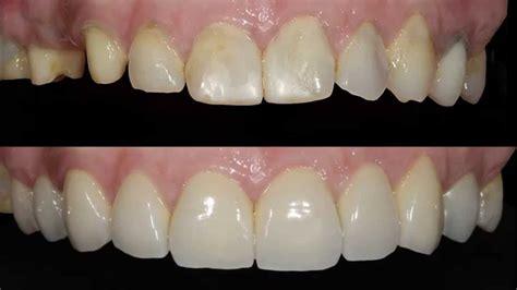 precios de fundas dentales transformando sonrisas coronas dentales de circonio