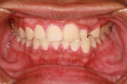 image gallery gingivitis