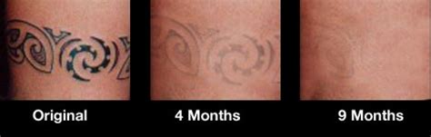 fade away tattoo removal cream tat b removal system 4 month supply