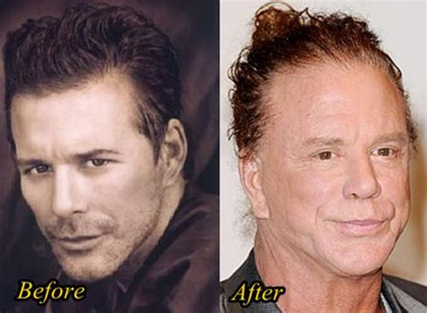 Plastic Surgery Scary Second City Style Fashion by Mickey Rourke Before And After Plastic Surgery