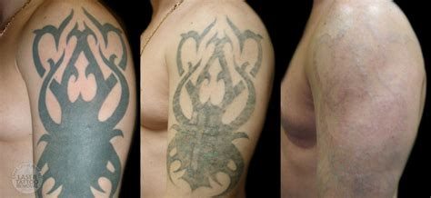 removing a fresh tattoo removal clean canvas more laser removal