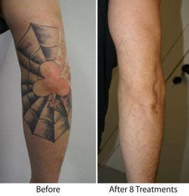 50 cent tattoo removal before and after pictures removal in santa barbara