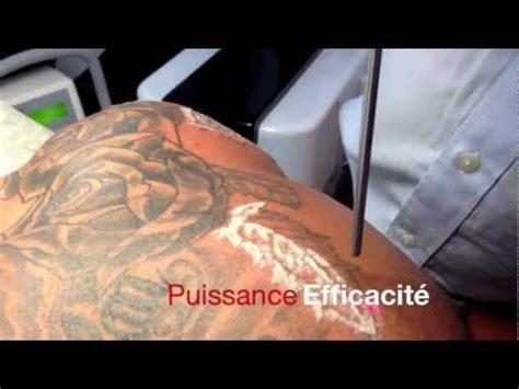 enlever les tatouages au laser tattoo removal black skin