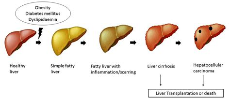 liver disease fatty liver disease a condition caused by modern day lifestyle atlas of science