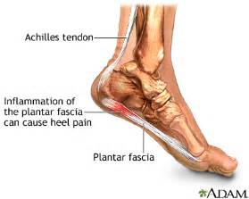Planter Facia by Chiropractic For Plantar Fasciitis Livestrong
