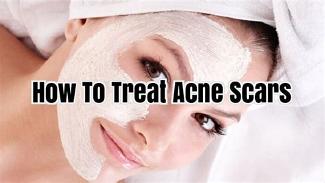 10 Ways To Treat Acne Scars by How To Treat Acne Scars Acne Scar Removal