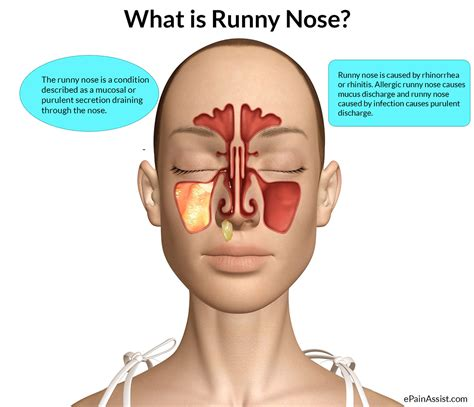 has runny nose runny nose that irritates throat
