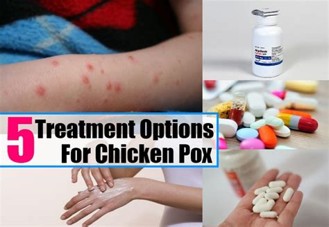 5 treatment options for chicken pox how to treat chicken