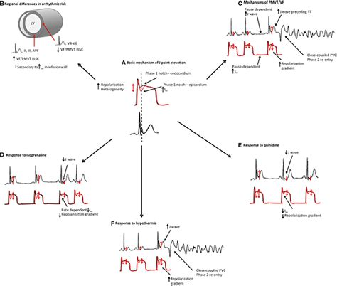 pattern theory physiology frontiers early repolarization syndrome mechanistic