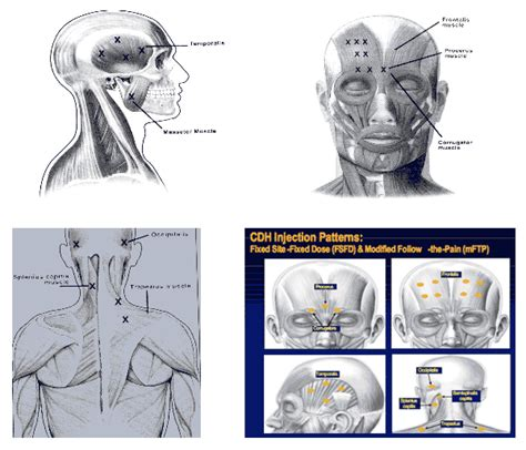 botox injection for migraines diagram dr ali elahi is a board certified neurologist in mission