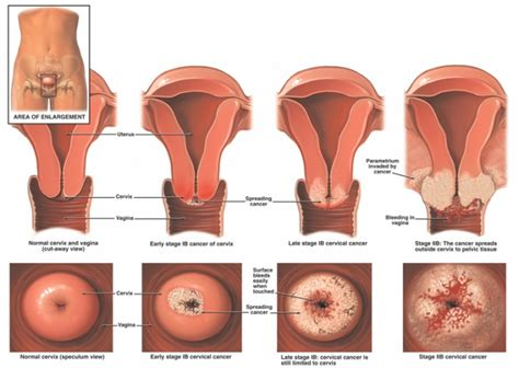 Chandelier Cells Cervical Cancer Physiopedia