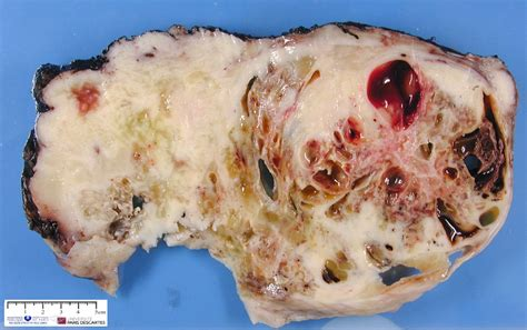 tumor pictures malignant peripheral nerve sheath tumor humpath human pathology