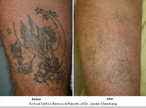 results of laser tattoo removal is laser removal the solution to regret ahb