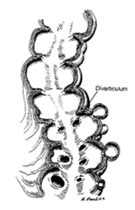 alimentazione per diverticoli intestinali pasquale talento specialista diverticoli colon